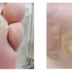 ALL YOU NEED TO KNOW ABOUT SWIFT WART THERAPY