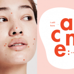 Is KILLA™ Acne Treatment Right for You?